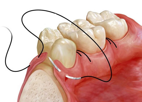 Chirurgie dento alveolara