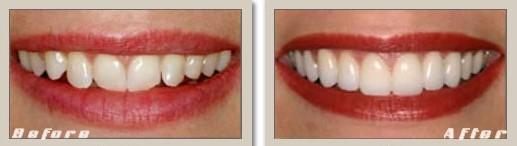 Simulare fatete dentare